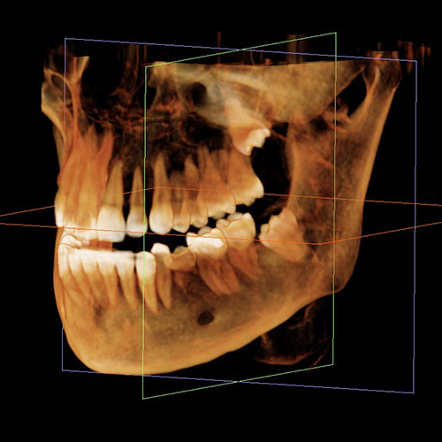 Dental imaging columbia sc