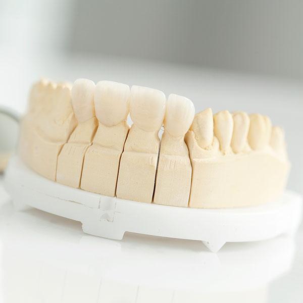 Dental crown square